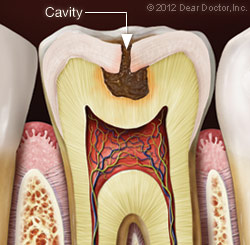 Illustration of Cavity Before and After Filling