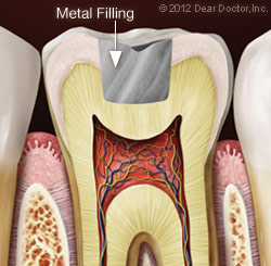 Illustration of Tooth After Metal Filling