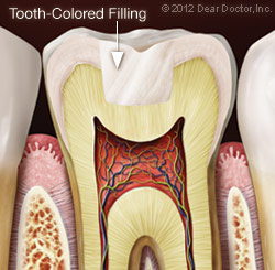 Illustration of Tooth After Tooth Color Filling